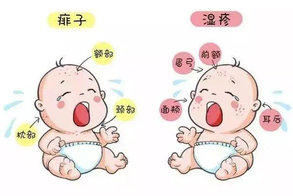 宝宝湿疹怎么护理?这些控制方法妈妈一定要知道