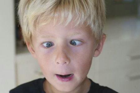 宝宝斗鸡眼是正常的吗?